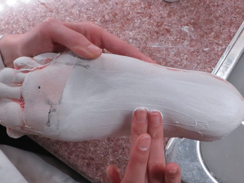 Plaster is added to the medial longitudinal arch. This partial 'filling in' permits a limited amount of pronation which is essential to comfortable orthotics. Plaster is also used to smooth the perimeter of the foot. (custom orthotics fabrication process step 7.)