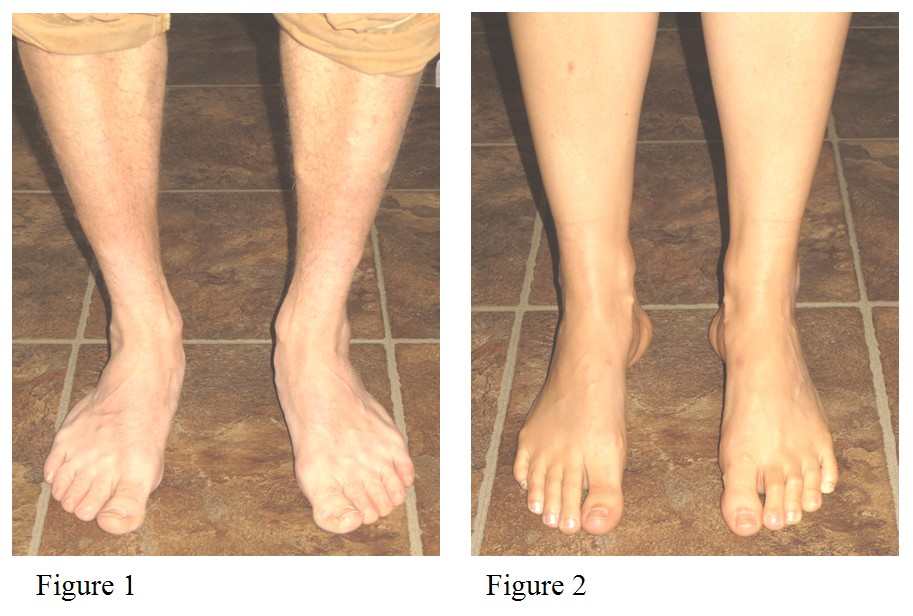Orthotics Blog. Custom Foot Orthotics: A Frequently Overlooked Treatment for Symptoms of Hip Osteoarthritis. Figure 1: Individual with pronated feet (ankles roll inward). Figure 2: Individual with supinated / cavus feet (ankles roll outward).